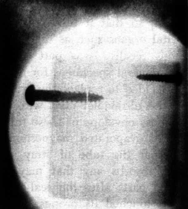 225 Simon's radiograph of two screws imbedded in an inch-thick block of wood